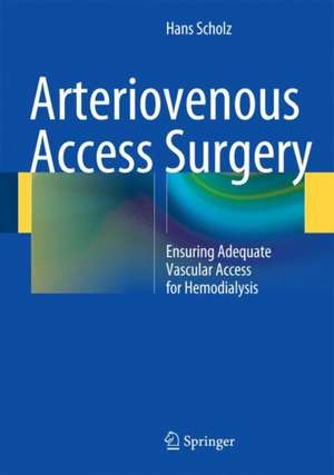 Arteriovenous Access Surgery