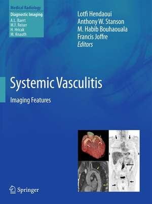 Systemic Vasculitis: Imaging Features de Lotfi Hendaoui