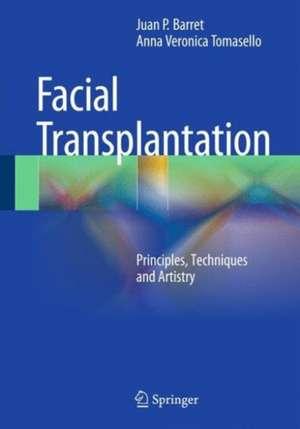 Face Transplantation
