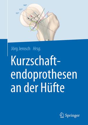 Kurzschaftendoprothesen an der Hüfte de Jörg Jerosch