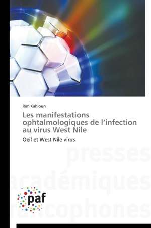 Les manifestations ophtalmologiques de l'infection au virus West Nile