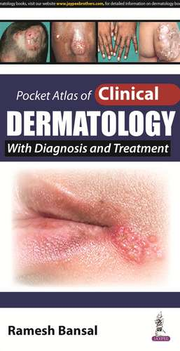 Pocket Atlas of Clinical Dermatology