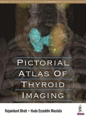 Pictorial Atlas of Thyroid Imaging