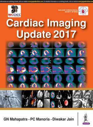 Cardiac Imaging Update 2017