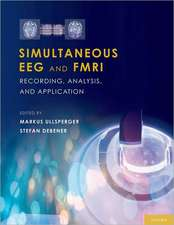 Simultaneous EEG and fMRI: Recording, Analysis, and Application