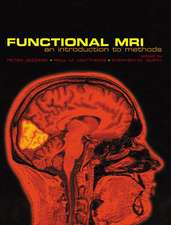Functional Magnetic Resonance Imaging: An Introduction to Methods