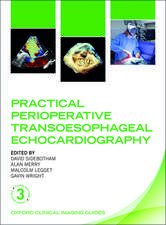 Practical Perioperative Transoesophageal Echocardiography: Oxford Clinical Imaging Guides