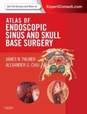 Atlas of Endoscopic Sinus and Skull Base Surgery Expert Consult - Online and Print: Palmer Atlas de chirurgie endoscopică