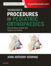 Tachdjian's Procedures in Pediatric Orthopaedics: From the Texas Scottish Rite Hospital for Children