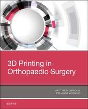 3D Printing in Orthopaedic Surgery