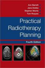 Practical Radiotherapy Planning