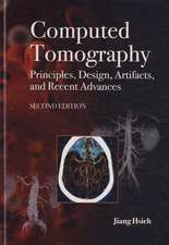 Computed Tomography Principles, Design, Artifacts, and Recent Advances
