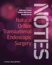 Natural Orifice Translumenal Endoscopic Surgery: Textbook and Video Atlas