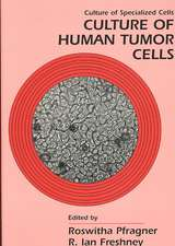 Cultural of Human Tumor Cells & Cultural of Epithelial Cells 2e (Set)