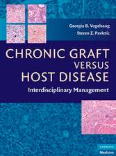 Chronic Graft Versus Host Disease: Interdisciplinary Management