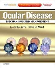 Ocular Disease: Mechanisms and Management