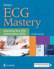 ECG Mastery