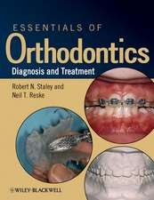 Essentials of Orthodontics: Diagnosis and Treatment