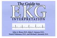 The Guide to EKG Interpretation: Revised Edition