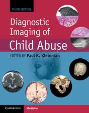 Diagnostic Imaging of Child Abuse