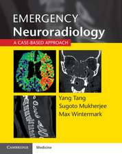Emergency Neuroradiology: A Case-Based Approach