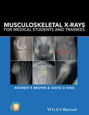 Musculoskeletal X–Rays for Medical Students and Trainees