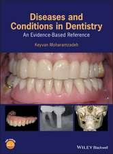 Diseases and Conditions in Dentistry: An Evidence–Based Reference