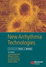 New Arrhythmia Technologies