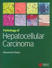 Pathology of Hepatocellular Carcinoma