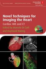 Novel Techniques for Imaging the Heart: Cardiac MR and CT