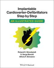 Implantable Cardioverter – Defibrillators Step by Step: An Illustrated Guide