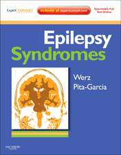 Epilepsy Syndromes: Expert Consult - Online, Print, and DVD