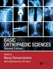 Basic Orthopaedic Sciences, Second Edition:  A Practical Handbook
