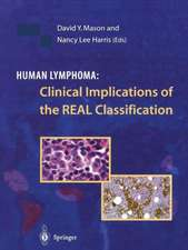 Human Lymphoma: Clinical Implications of the REAL Classification