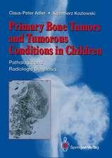 Primary Bone Tumors and Tumorous Conditions in Children: Pathologic and Radiologic Diagnosis