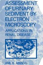 Assessment of Urinary Sediment by Electron Microscopy: Applications in Renal Disease