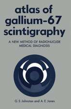 Atlas of Gallium-67 Scintigraphy: A New Method of Radionuclide Medical Diagnosis