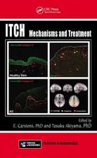 Itch:  Mechanisms and Treatment