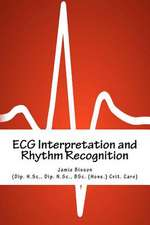 ECG Interpretation and Rhythm Recognition