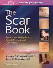 The Scar Book: Formation, Mitigation, Rehabilitation and Prevention