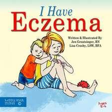 I Have Eczema