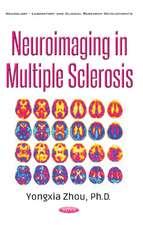 Neuroimaging in Multiple Sclerosis