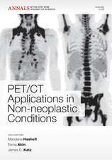 PET CT Applications in Non–Neoplastic Conditions, Volume 1228