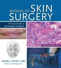 Manual of Skin Surgery:  A Practical Guide to Dermatologic Procedures