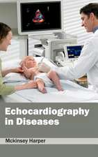 Echocardiography in Diseases