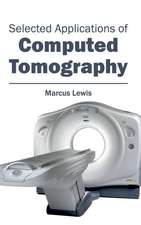 Selected Applications of Computed Tomography