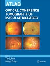 Atlas of Optical Coherence Tomography of Macular Diseases:  An Illustrated Clinical Guide