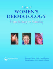 Atlas of Women's Dermatology:  From Infancy to Maturity