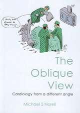 The Oblique View