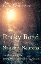 The Rocky Road of Naughty Neurons